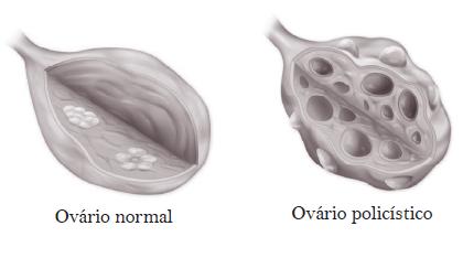 ovaros poliscisticos